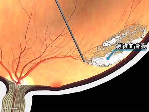 線維血管膜の除去2