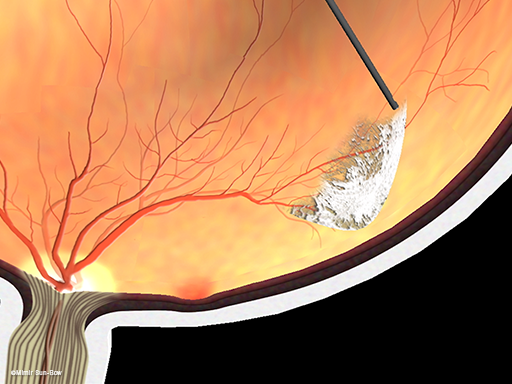線維血管膜の除去3
