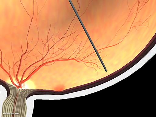 線維血管膜の除去4