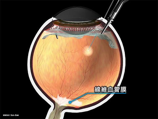 線維血管膜の除去/黄斑周辺1