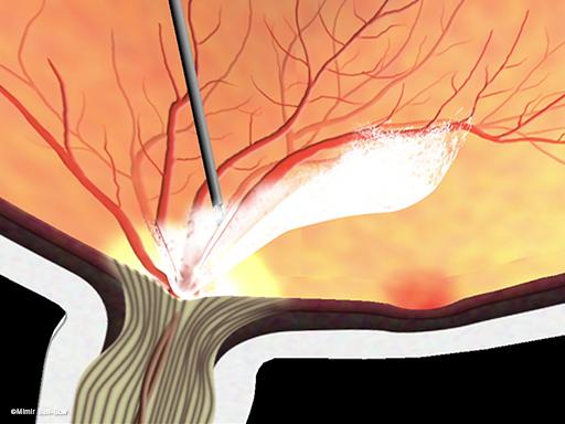 線維血管膜の除去/黄斑周辺3