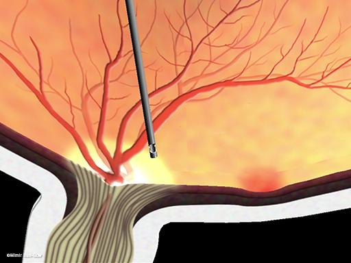 線維血管膜の除去/黄斑周辺4