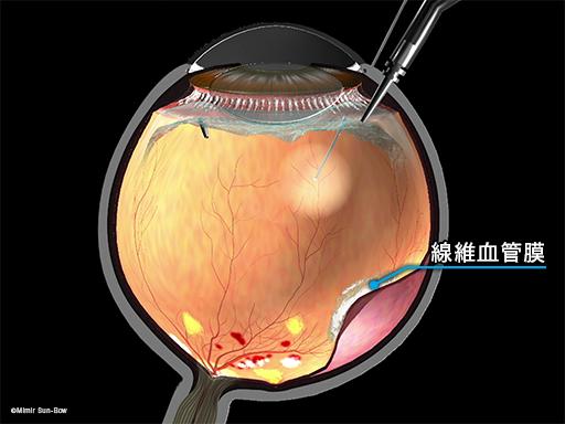線維血管膜除去と網膜剥離1