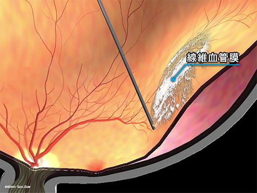 線維血管膜除去と網膜剥離2