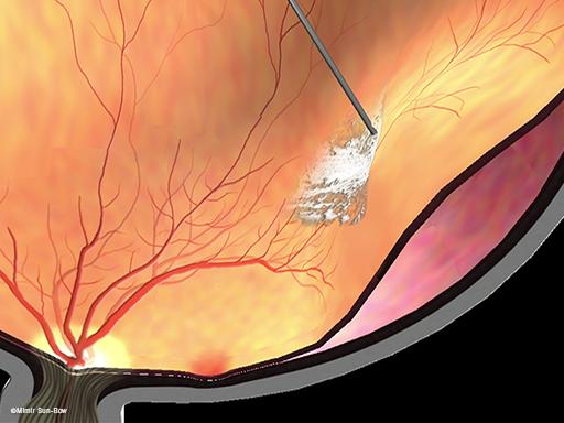 線維血管膜除去と網膜剥離3