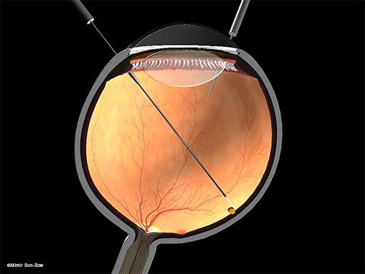 網膜の円孔1