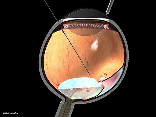 網膜剥離1