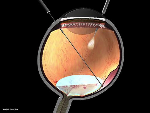 網膜剥離3