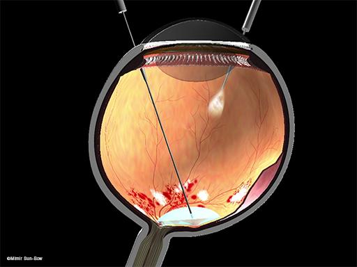 網膜剥離4