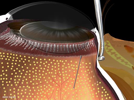 周辺部の眼内光凝固術3