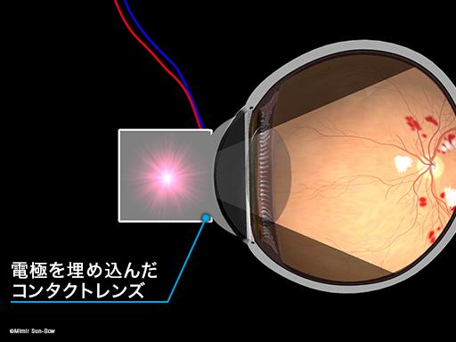 網膜電図(ERG)1