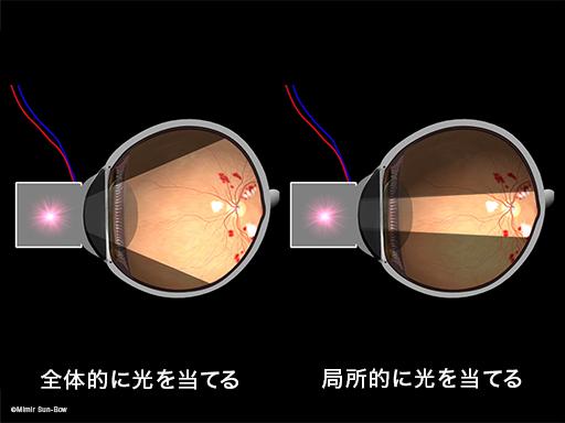 網膜電図(ERG)4