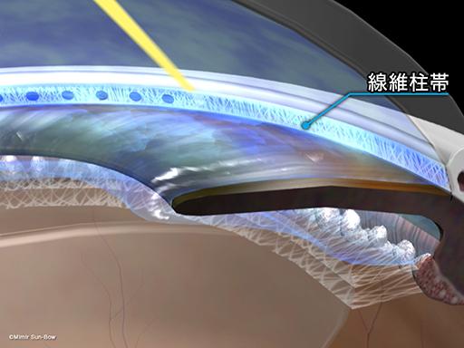 レーザー線維柱帯形成術[APNG]