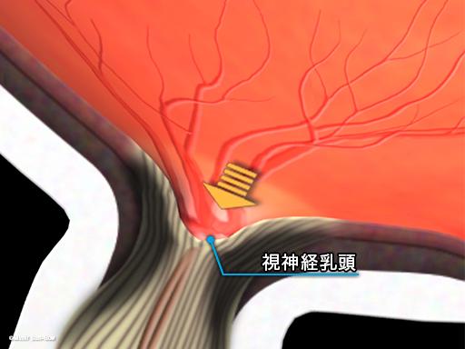 眼圧上昇と視神経乳頭2