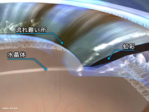 閉塞隅角緑内障3