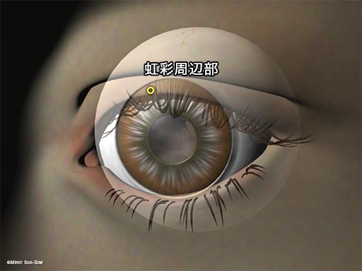 レーザー虹彩切開術の位置1
