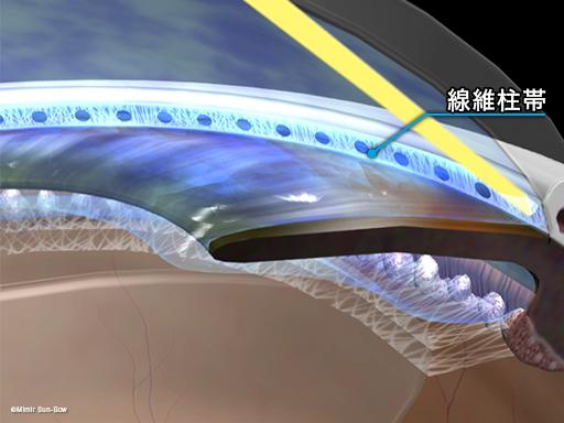 レーザー線維柱帯形成術3