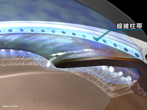 レーザー線維柱帯形成術4