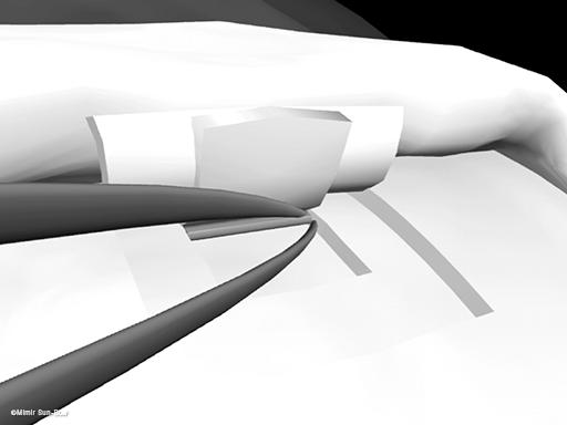 非穿孔性線維柱帯切除術3