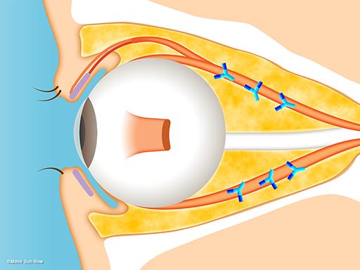 眼球突出(筋肉の腫れ)[APNG]