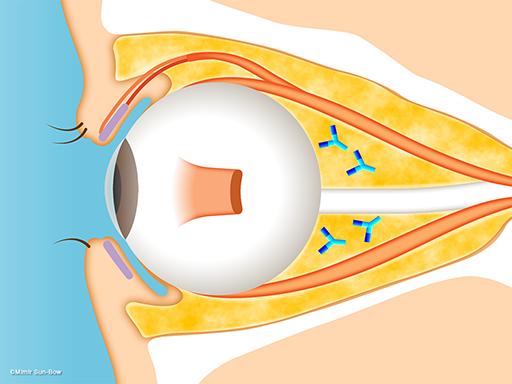 眼球突出(脂肪の腫れ)[APNG]