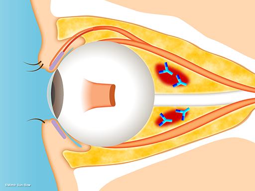 眼球突出(脂肪の腫れ)2