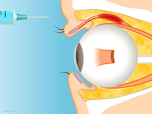 ステロイド局所注射(上眼瞼への注射)1