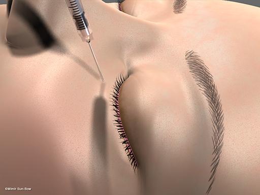 眼瞼内反の手術1