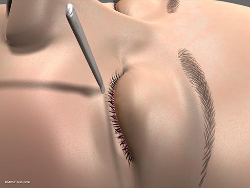 眼瞼内反の手術2