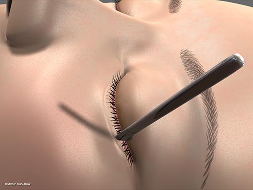 眼瞼内反の手術3