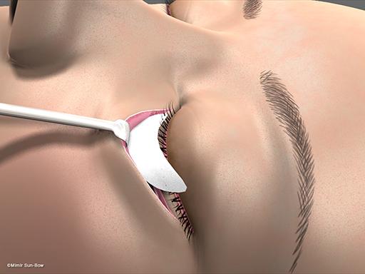 眼瞼内反の手術5