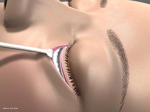 眼瞼内反の手術6