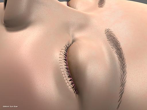 眼瞼内反の手術7