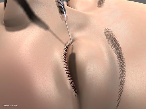眼瞼腫脹の手術1