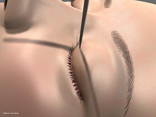 眼瞼腫脹の手術2