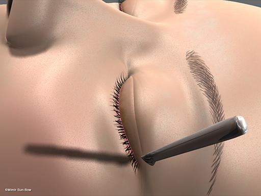 眼瞼腫脹の手術3