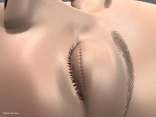 眼瞼腫脹の手術6