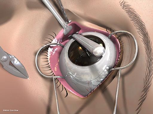 経結膜の眼窩減圧術10
