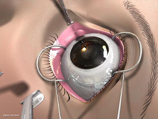 経結膜の眼窩減圧術12
