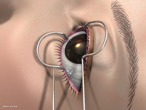 経結膜の眼窩減圧術1