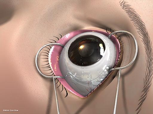 経結膜の眼窩減圧術2