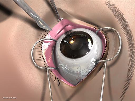 経結膜の眼窩減圧術4