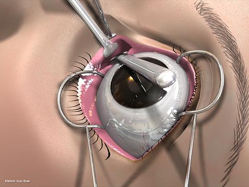 経結膜の眼窩減圧術5