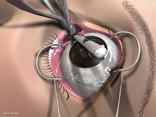 経結膜の眼窩減圧術6