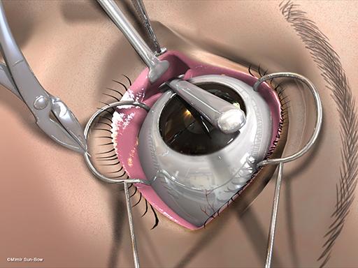 経結膜の眼窩減圧術7