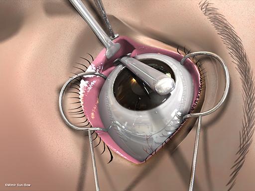 経結膜の眼窩減圧術8