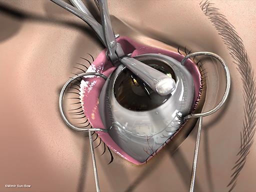経結膜の眼窩減圧術9
