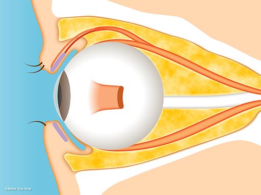 視神経症(筋肉の肥大)1