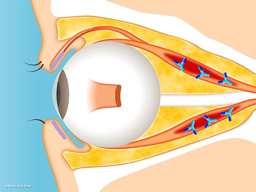 視神経症(視神経の圧迫)3