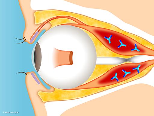 視神経症(視神経の圧迫)4